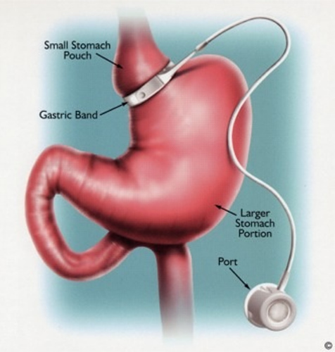 Lap Band Surgery Bariatric Surgery North Atlanta Surgical